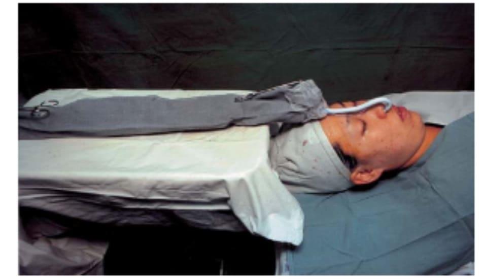 Hình 35-1 Bàn đựng dụng cụ có chân Mayo để hỗ trợ ống nội khí quản qua mũi bằng cách lấp khoảng trống giữa ống nội khí quản và máy thở.