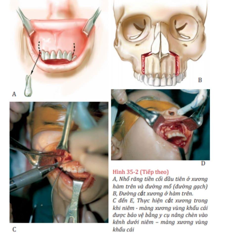 Hình 35-2 (Tiếp theo) A, Nhổ răng tiền cối đầu tiên ở xương hàm trên và đường mổ (đường gạch) B, Đường cắt xương ở hàm trên. C đến E, Thực hiện cắt xương trong khi niêm - màng xương vùng khẩu cái được bảo vệ bằng y cụ nâng chèn vào kênh dưới niêm – màng xương vùng khẩu cái