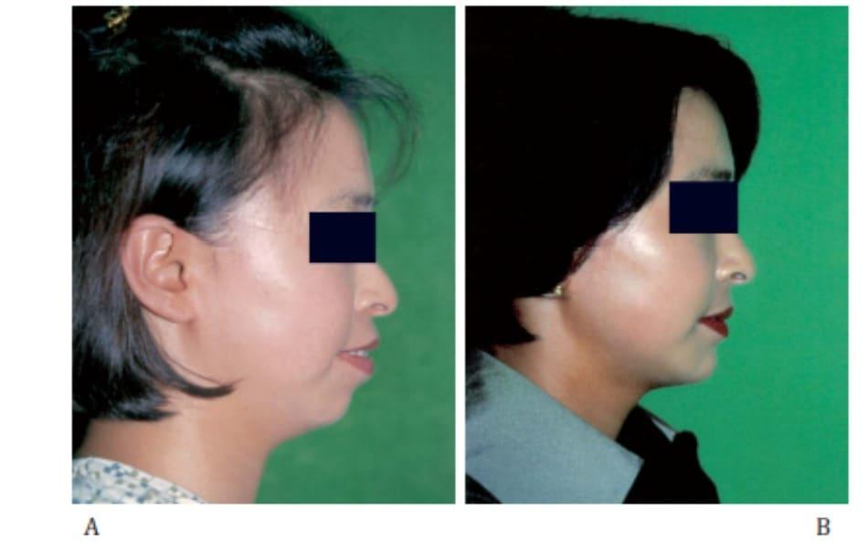 Hình 35-4 A,Cận cảnh nhìn từ phía trước và phía bên một người nữ 25 tuổi bị hô. B, Hình ảnh sau phẫu thuật cắt phần trước xương hai hàm trên dưới 13 tháng.