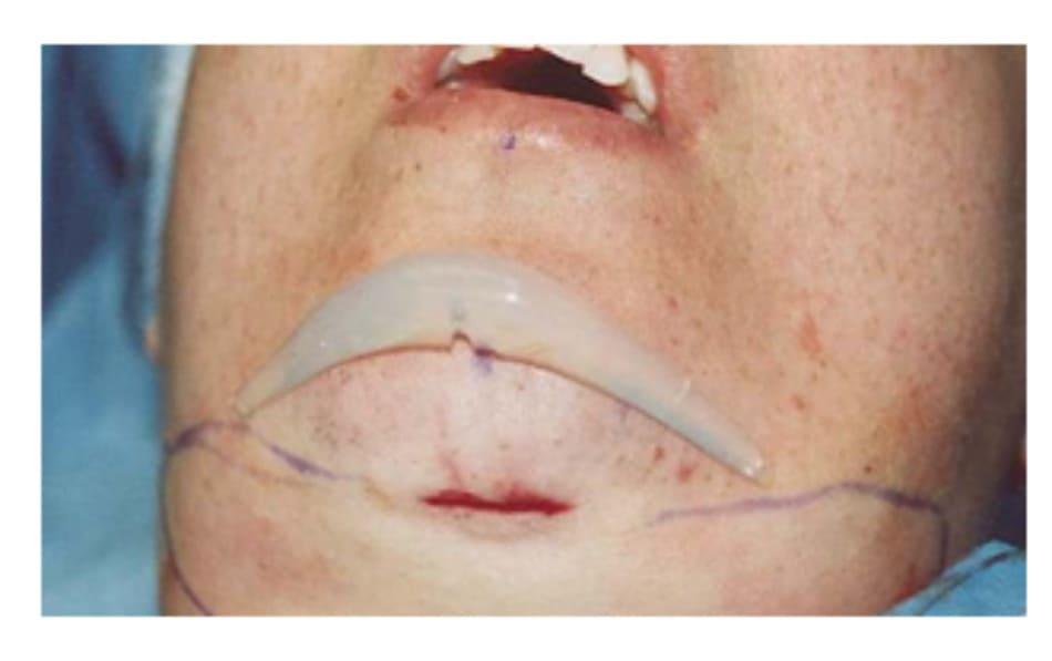 Hình 36-1 Vị trí ước đoán cho việc đặt implant ở cằm được xác định và đánh dấu lại. Một túi khớp với vị trí đánh dấu sau đó sẽ được tạo ra.