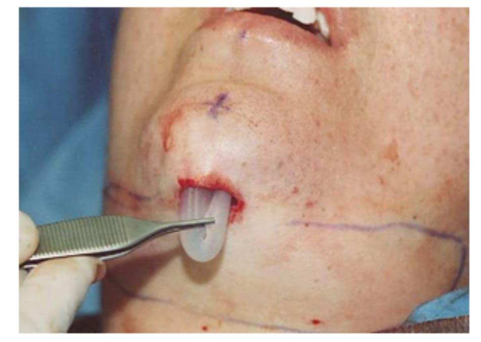 Hình 36-3 Gấp implant, đầu còn lại được nhét vào bên trái của túi.