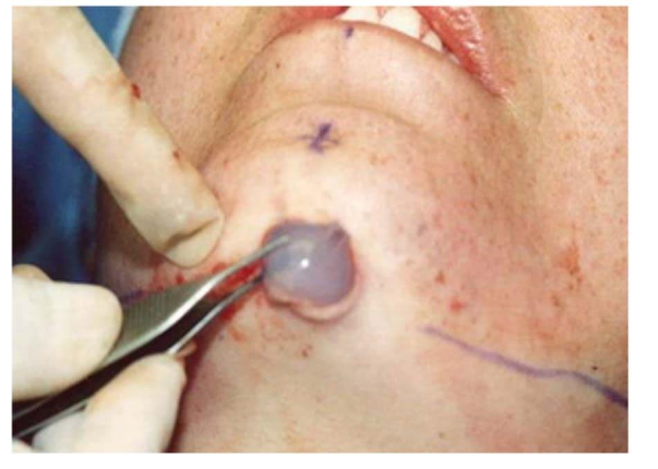 Hình 36-4 Phần giữa của implant được đẩy vào trong túi