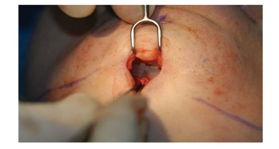 Hình 36-5 Khấc giữa của implant đươc đặt chính xác vào đường giữa.