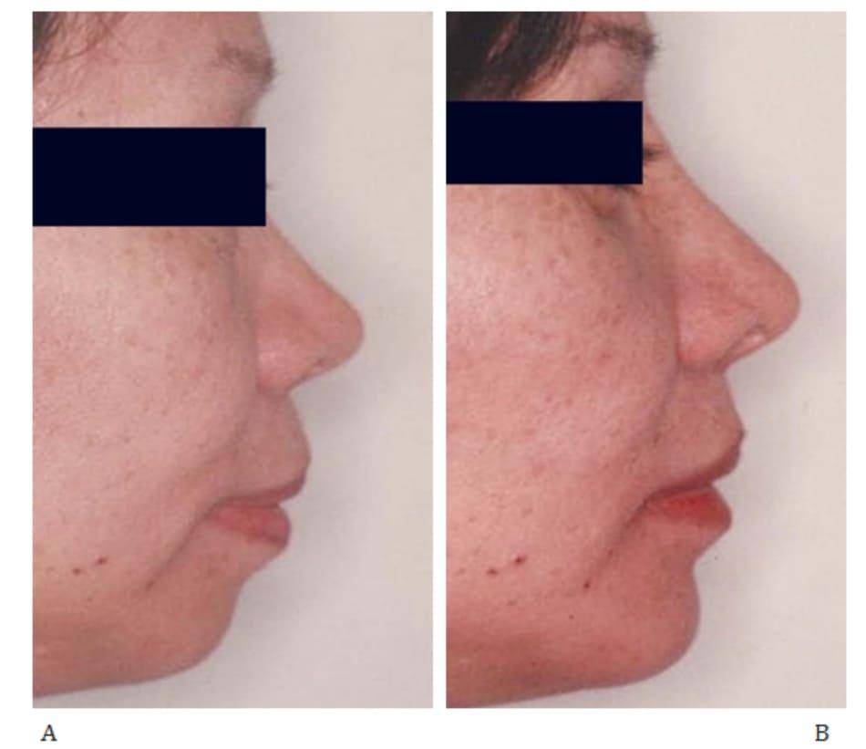 Hình 36-6 A. Hình ảnh trước mổ. B, Hình ảnh sau mổ. Bệnh nhân cũng được nâng mũi đồng thời.