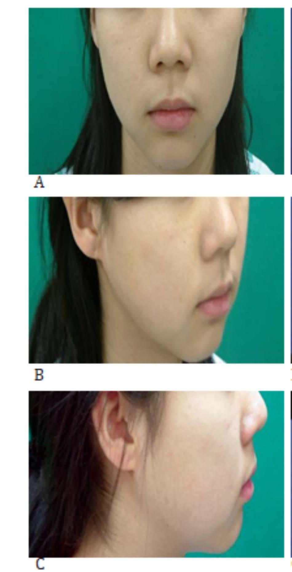Hình 37-4 A đến C, cận cảnh khuôn mặt trước phẫu thuật của bệnh nhân có cằm lẹm