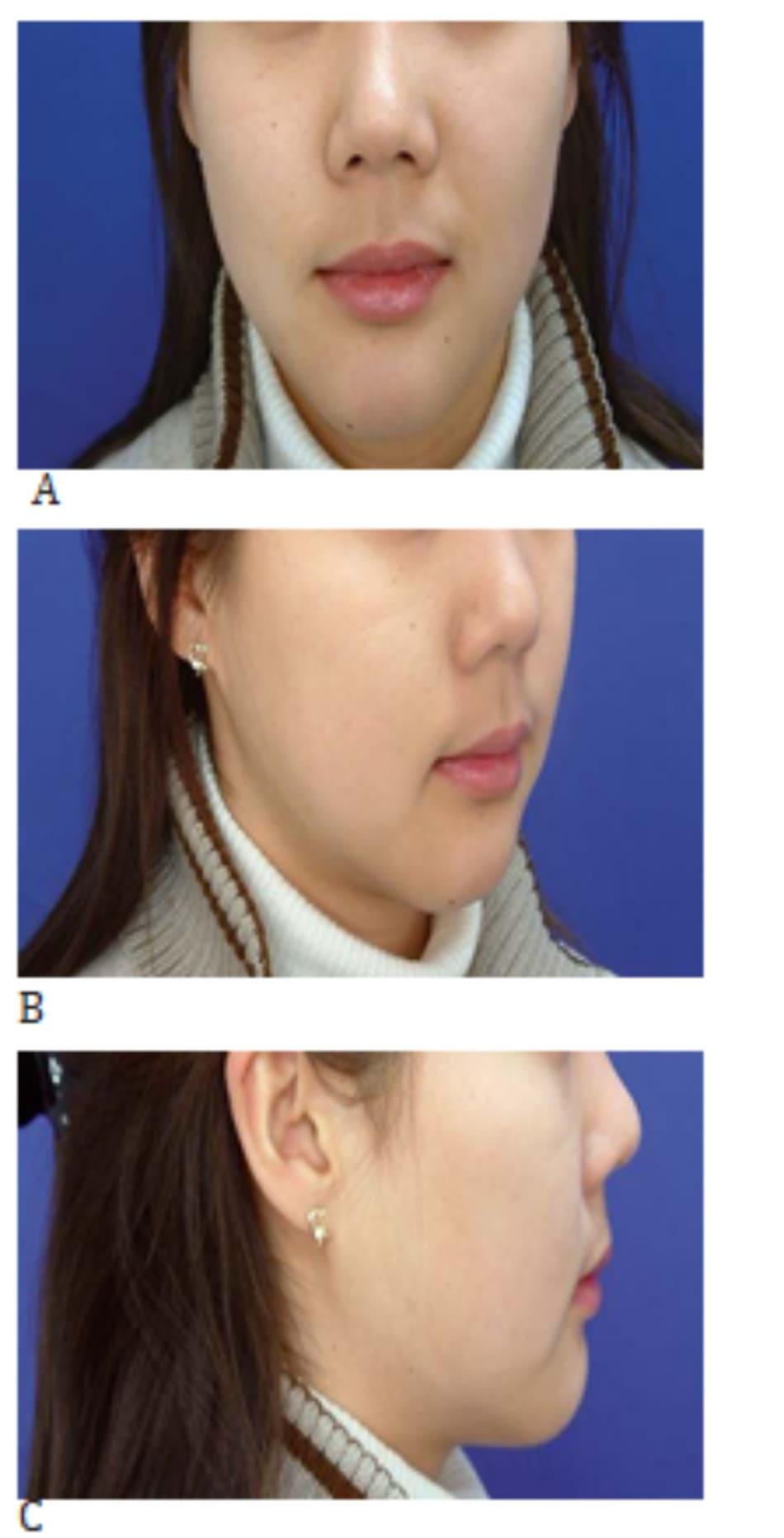 Hình 37-5 A đến C, cận cảnh khuôn mặt sau phẫu thuật nâng cằm (nâng 4 mm)