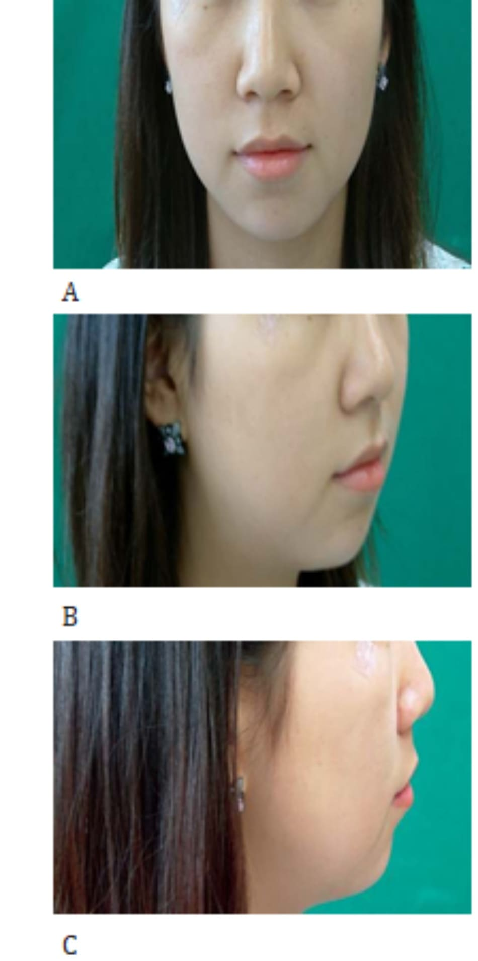 Hình 37-6 A to C, Preoperative facial views of a patient with a retruded chin.