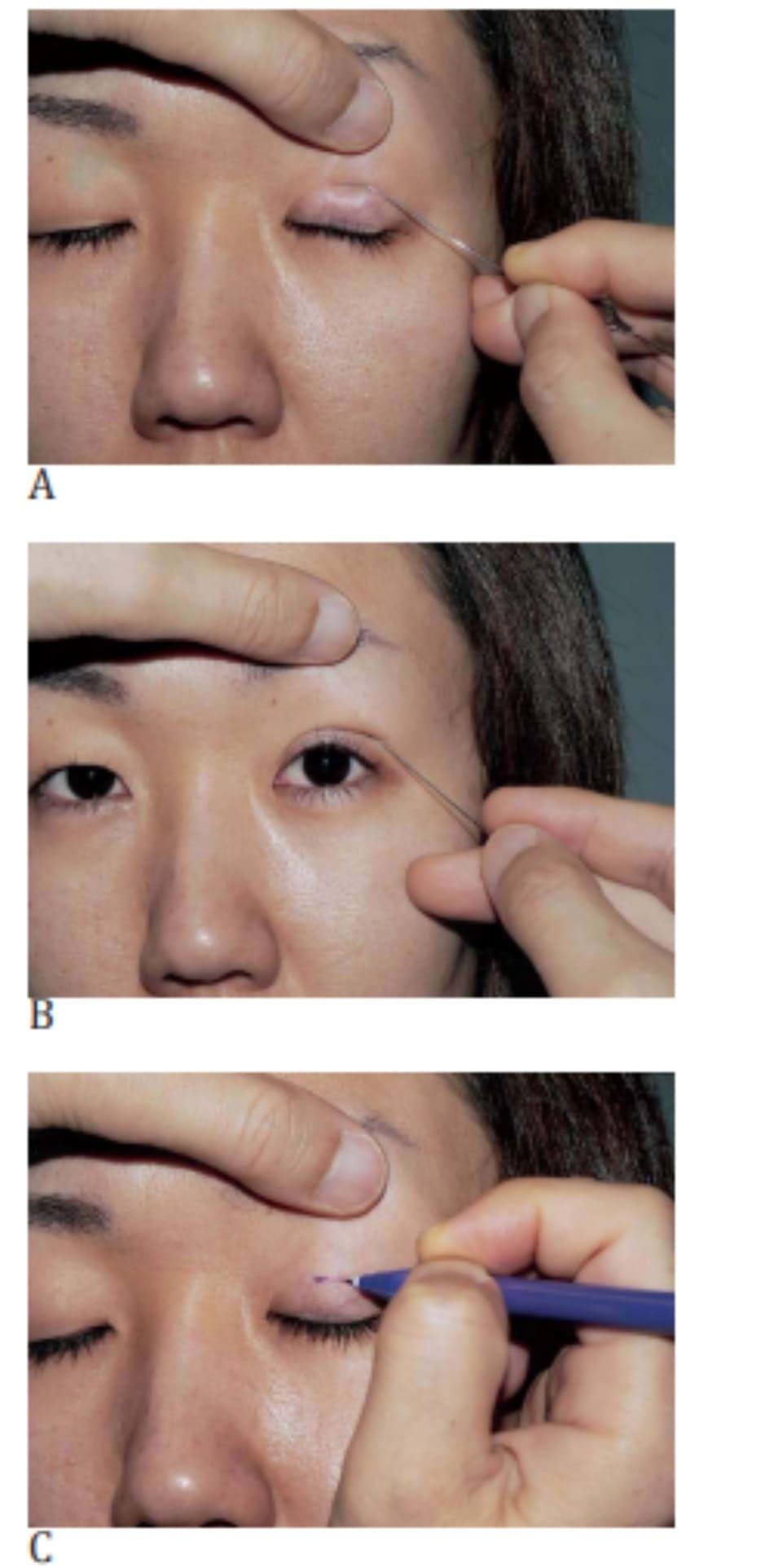 Hình 4-1 A, Nhấn que thông lệ đạo vào mí mắt trên. B, Nếp gấp hai mí được mô phỏng, C, Vẽ đường rạch.