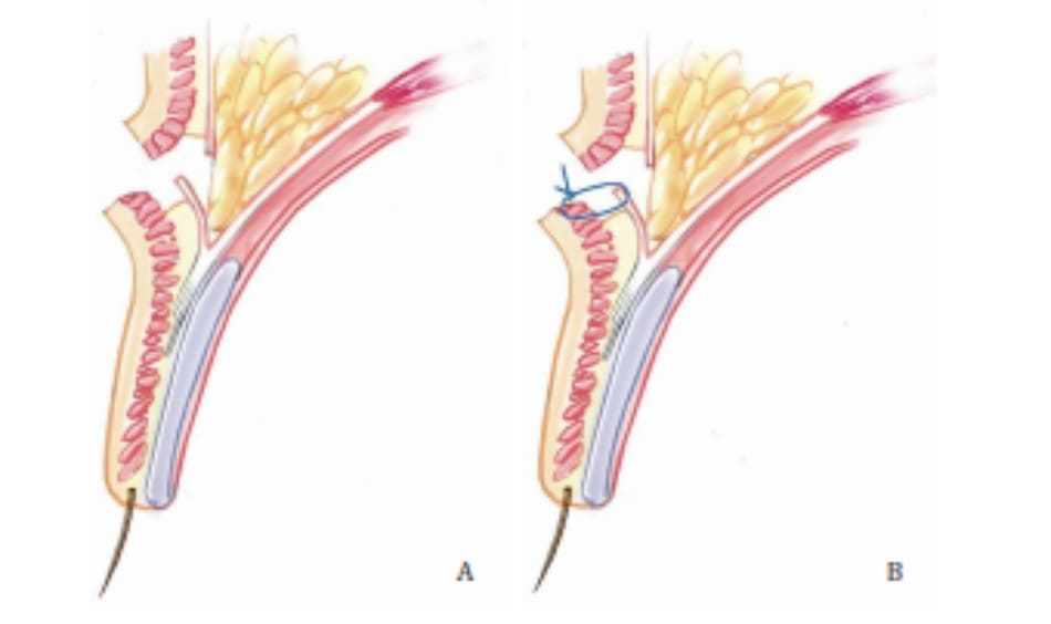Hình 4-3 A, Cố định chuyển vách ngăn-da. B, Các mô trước hốc mắt được cắt bỏ, và rạch vùng vách ngăn. C, Chỉ khâu được đưa qua lớp hạ bì và cơ ở rìa dưới vết rạch và sau dó đi qua rìa dưới hốc mắt.