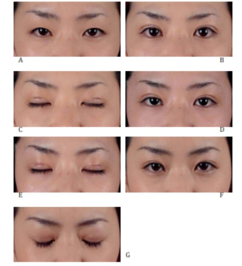 Hình 4-6 Cố định da-sụn mi. A, Hình trước phẫu thuật. B, Hình ngay sau phẫu thuật (mắt mở), C, Hình ngay sau phẫu thuật (nhắm mắt). D, Hình sau 5 ngày hậu phẫu (mắt mở). E, Hình sau 5 ngày hậu phẫu (nhắm mắt). F, Hình sau 4 tháng hậu phẫu (mắt mở).), G, Hình sau 4 tháng hậu phẫu (nhắm mắt).