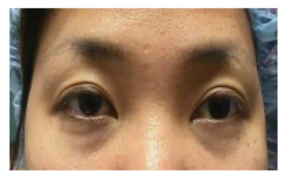 Hình 5-12 Phẫu thuật tái điều chỉnh: hình ảnh tiền phẫu của bệnh nhân B.