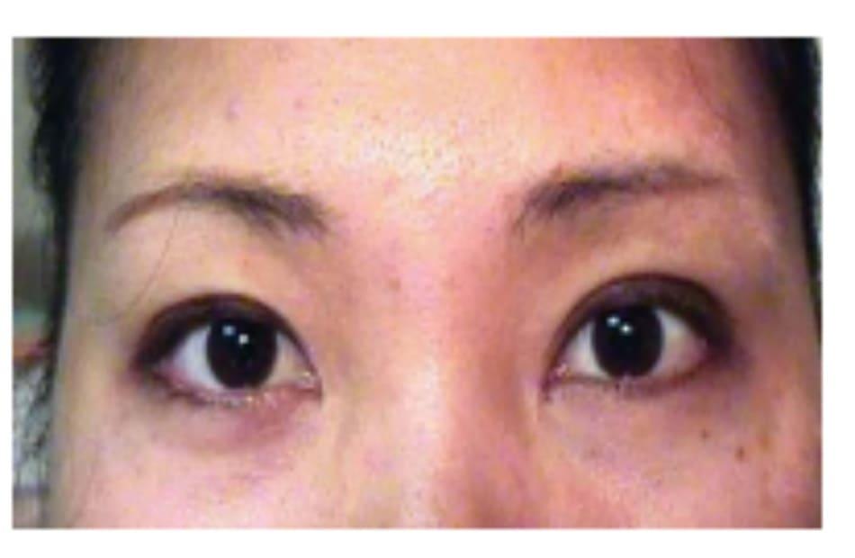 Hình 5-13 Phẫu thuật tái điều chỉnh: hình ảnh hậu phẫu 2 tháng của bệnh nhân B.