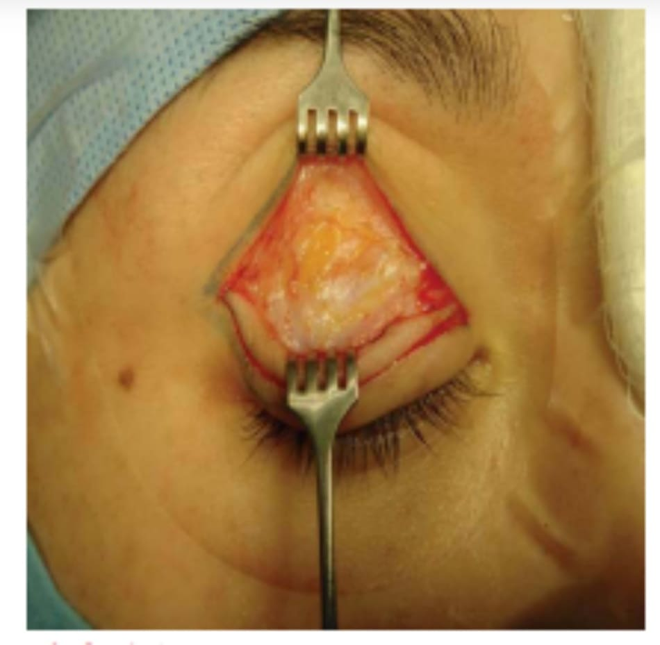 Hình 5-3 Cắt ngang cơ vòng mi mắt và vách ngăn ổ mắt, đi đến phần mỡ trước cơ nâng.