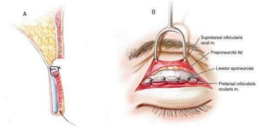 Hình 6-1 Hình ảnh minh họa điểm tiếp xúc rộng giữa cơ nâng mi bị gấp và cơ vòng mi mắt.