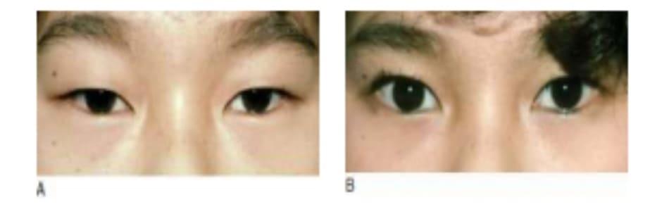 Hình 6-12 A, Tiền phẫu. B.Giấu nấp hai mí, nhưng mắt mở to hơn do kết quả cố định cơ nâng.