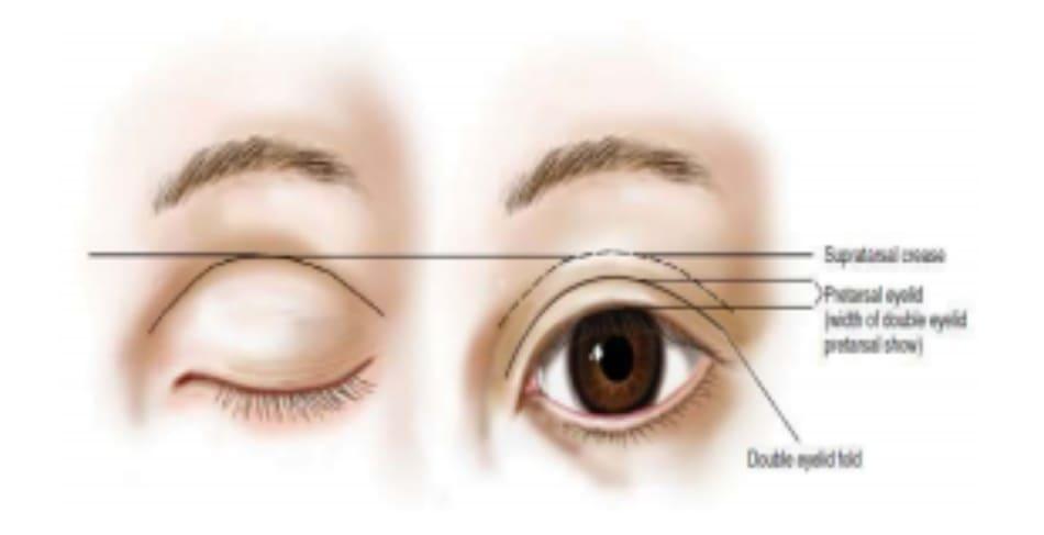 Hình 6-13 Nếp trên sụn mi là vị trí cố định; khi mắt mở, một nếp gấp đôi được tạo thành. Phần mi mắt trước sụn mi được bộ lộ khi mắt mở sẽ tạo nên hình ảnh vùng trước sụn mi. Mức độ của vùng trước sụn mi còn được mô tả là chiều cao nếp gấp mí đôi.