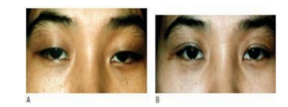 Hình 6-15 A, Tiền phẫu. B, Loại bỏ tích cực mô mỡ tạo nếp gấp phụ ở mắt trái.