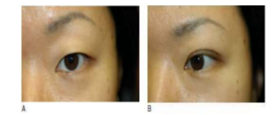 Hình 6-16 A, Hình ảnh tiền phẫu cho thấy vị trí cung mày cao, kết quả của tình trạng không chú ý nâng lớp da lỏng lẻo mí mắt trên để nhìn rõ. B, Hình ảnh hậu phẫu cho thấy vị trí cung mày thấp do không có nhu cầu nâng cung mày bù trừ.