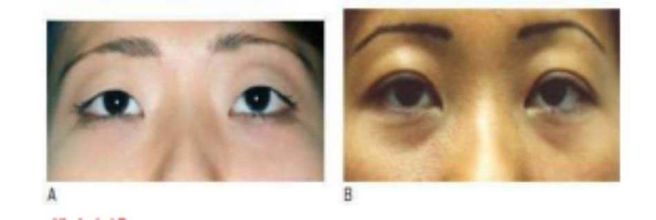 Hình 6-17 A, Hình ảnh tiền phẫu cố định cơ vòng-cơ nâng. B, Hình ảnh hậu phẫu sau 5 năm cho thấy vùng da trước sụn mi xếp chặt và rõ ràng, cùng với nếp gấp mí đôi được bảo tồn tốt.