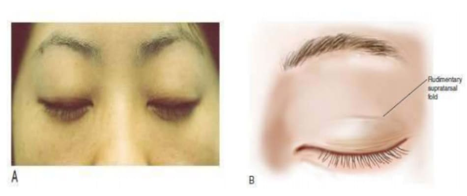 Hình 6-5 A, Đường sơ khởi của nếp trên sụn mi thường thấy ở bệnh nhân mắt một mí. Đường rạch được đánh dấu trên hoặc song song với đường này. B, Minh họa đường sơ khởi.