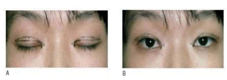 Hình 6-6 A, Chỉ rạch da mí mắt có mô thừa nhiều. B, Góc nhìn mắt mở.
