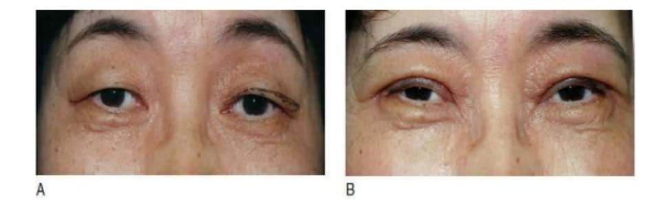Hình 7-1 Phẫu thuật mí mắt trên bệnh nhân châu Á lớn tuổi. A, Tiền phẫu. B, Hậu phẫu 1 năm. Dù có nếp gấp mí được tạo hình tốt, nhưng vẫn tồn tại hình ảnh đầy mắt không tự nhiên.