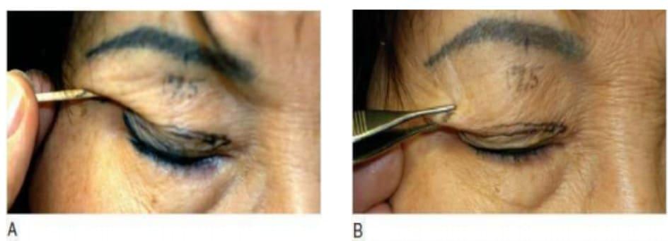 Hình 7-10 A, Mức độ cắt lọc da - cơ góc ngoài được xác định bằng que nhấn đầu cot- ton. B, Kĩ thuật véo.