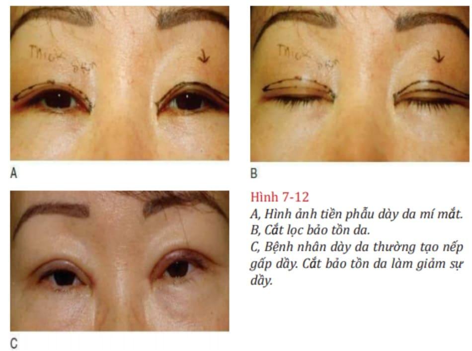 Hình 7-12 A, Hình ảnh tiền phẫu dày da mí mắt. B, Cắt lọc bảo tồn da. C, Bệnh nhân dày da thường tạo nếp gấp dầy. Cắt bảo tồn da làm giảm sự dầy.