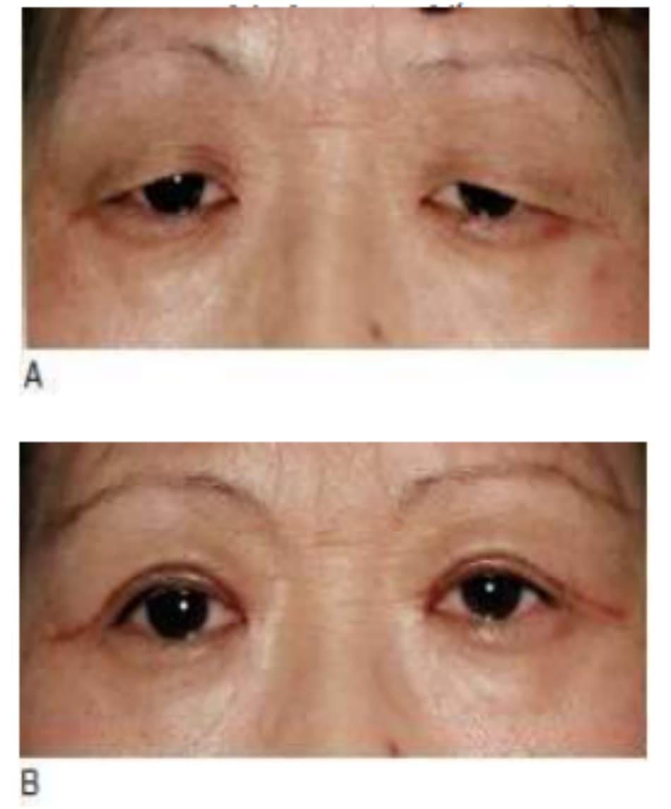 Hình 7-14 A, Tiền phẫu. B, Hậu phẫu 1 tháng cho thấy dầy đáng kể mi mắt và ửng đỏ đường rạch.