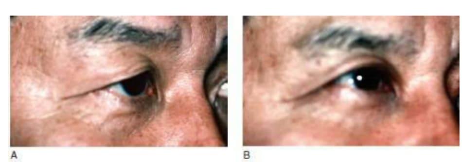 Hình 7-17 A, Tiền phẫu. B, Hậu phẫu. Cắt da bảo tồn không tạo nếp gấp hai mí được ưa dùng trên bệnh nhân nam vì tránh được sự xuất hiện của nếp dầy không tự nhiên. Tái hồi sớm xuất hiện theo lão hóa.