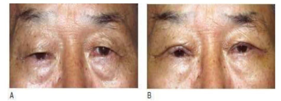 Hình 7-18 A, Tiền phẫu. B, Hậu phẫu. Tiếp cận tích cực được thực hiện trên bệnh nhân lớn tuổi này sau khi đã giải thích kết quả sau phẫu thuật. Bệnh nhân hài lòng với kết quả.