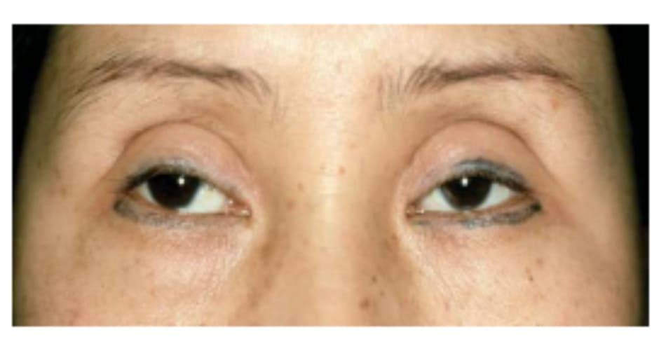 Hình 7-2 Mắt trũng sau phẫu thuật mí mắt dựa trên các nguyên tắc phẫu thuật cho người da trắng.