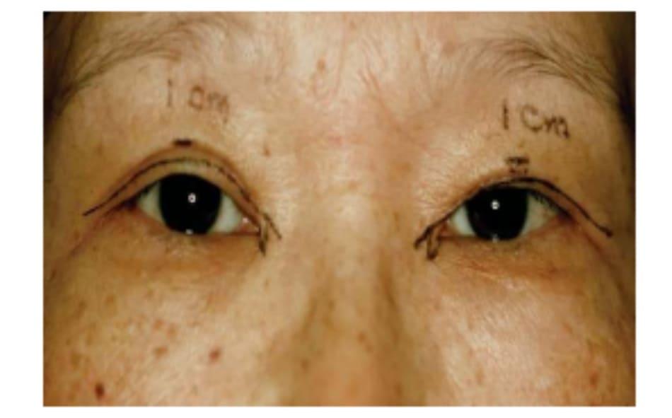 Hình 7-6 Đường rạch trên được đánh dấu khi mở mắt nhìn thẳng. Đường này cách 2-3 mm trên bờ mi.