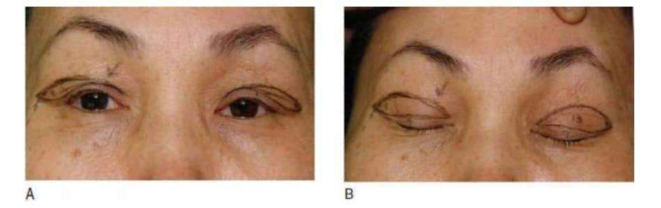 Hình 7-8 Đường cắt da - cơ hẹp, được vuốt nhọn ở góc trong và rộng ở vành đai ổ mắt. A, Khi mắt mở. B, Khi mắt nhắm.