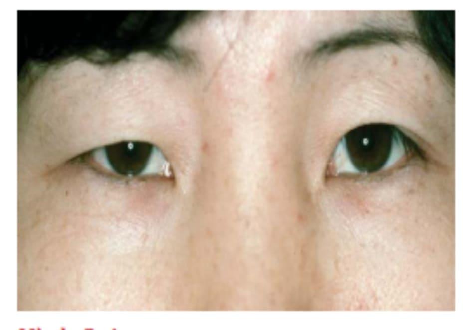 Hình 8-1 Mí mắt bất xứng và tái hồi. Mí mắt trên bên phải giả sụp mi do rũ da mí