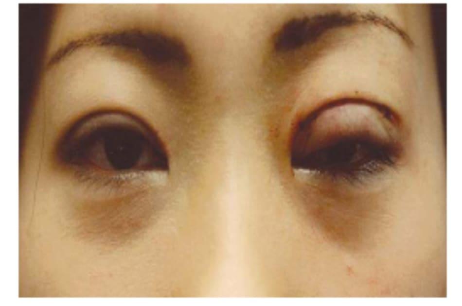 Hình 8-11 Sụp mi tạm thời do phù hậu phẫu từ phẫu thuật tái chỉnh mi mắt một bên. Mắt trở lại cân xứng khi vết thương lành.