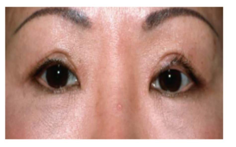 Hình 8-4 Nếp gấp góc ngoài rũ, không hoàn toàn và lộn da mí mắt sau khâu. Kết quả này là do cố định trung tâm cao và chắc mà không cố định tương đồng góc trong và góc ngoài. Do cấu trúc giải phẫu cơ nâng mi, cố định trung tâm có xu hướng chặt và khuếch đại trong khi nếp trong lỏng lẻo và nếp ngoài rũ.