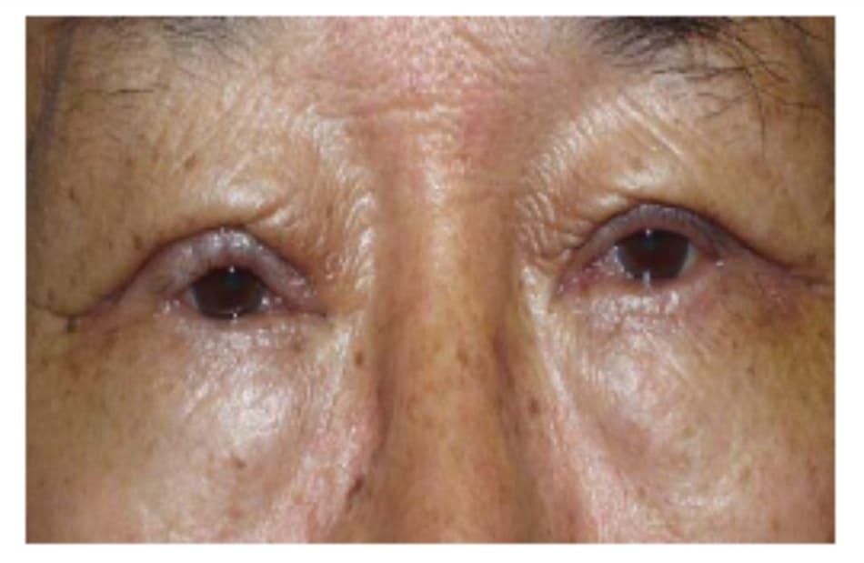 Hình 8-5 Mí mắt dầy hậu phẫu