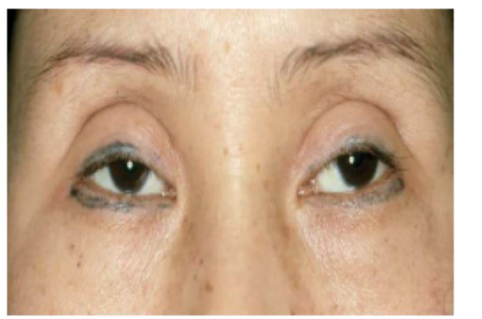 Hình 8-8 Mắt trũng là kết quả của việc loại bỏ nhiều mô mỡ và da.