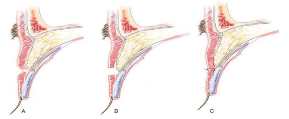 Hình 9-1 Xử lí sẹo lõm. A, Cắt bỏ sẹo. B, Tạo một vạt da - cơ vòng ngắn. C, Kéo vạt và khâu vào vùng da trước sụn mi và cơ. Cắt bỏ sẹo không bao gồm mô mềm dưới cơ.