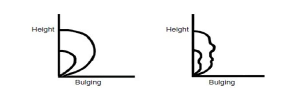 Hình 9-10 Khi tăng chiều cao của nếp trên bệnh nhân trẻ, hiệu ứng trồi sẽ tăng gấp đôi (hình bên trái). Độ dầy trước sụn mi không gây chú ý đối với lớp da mỏng, nhăn của bệnh nhân lớn tuổi. Tăng chiều cao nếp không ảnh hưởng độ trồi (hình bên phải).