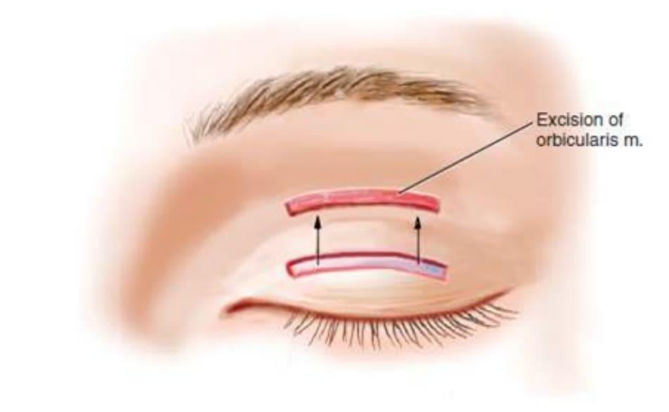 Hình 9-11 Cắt bỏ phần giữa cơ vòng mắt trước sụn mi.