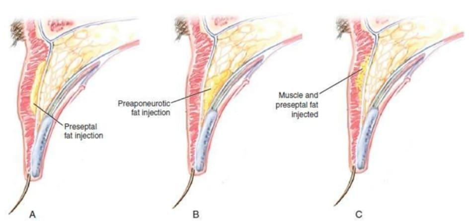 Hình 9-15 Vạt. Trước vách ngăn (A), trước gân cơ nâng mi (B) và © tiêm mỡ vào cơ vòng mi mắt, R.O.O.F/ khoang trước vách ngăn, hoặc cả hai.