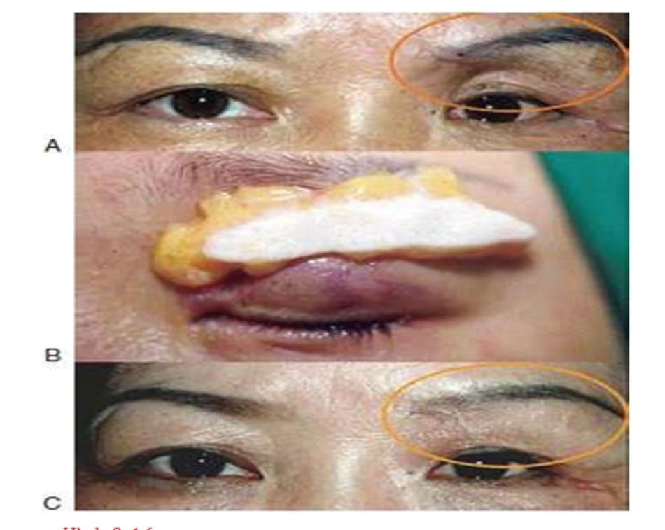 Hình 9-16 Mi mắt trũng. Tiền phẫu (A), vạt da cơ (B), và (C) hậu phẫu.