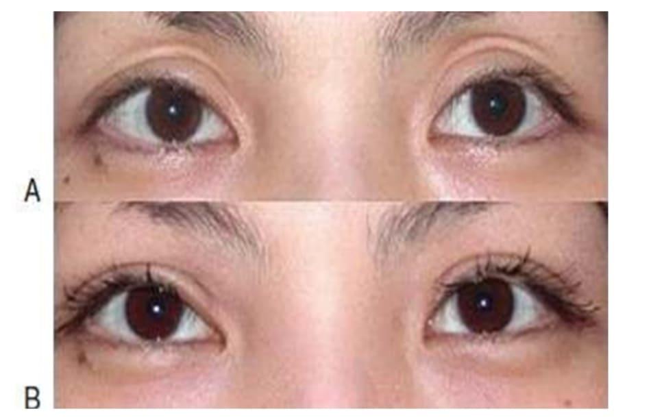 Hình 9-18 Tiêm mỡ vào mi mắt trũng. A, Tiền phẫu. B, Hậu phẫu.