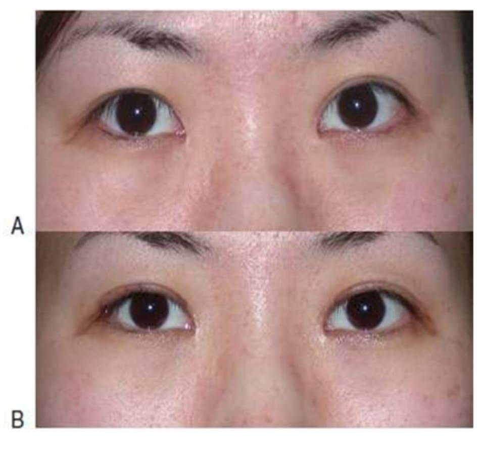 Hình 9-3 A, Nếp gấp thấp tiền phẫu. B, Nếp gấp cao hậu phẫu. Chỉ cắt lọc da phía trên đường sẹo cũ.
