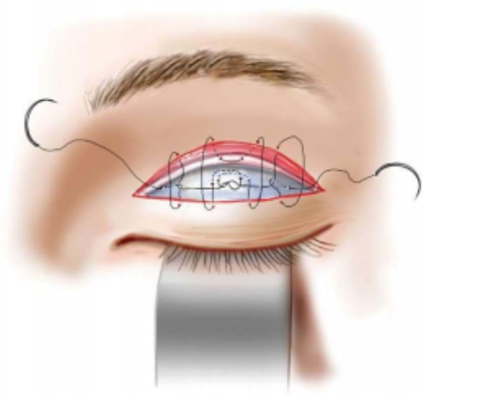 Hình 1-2 Phương pháp Maruo