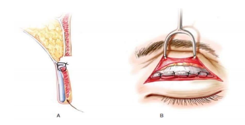 Hình 8 A: Mặt cắt ngang B: Phẫu trường