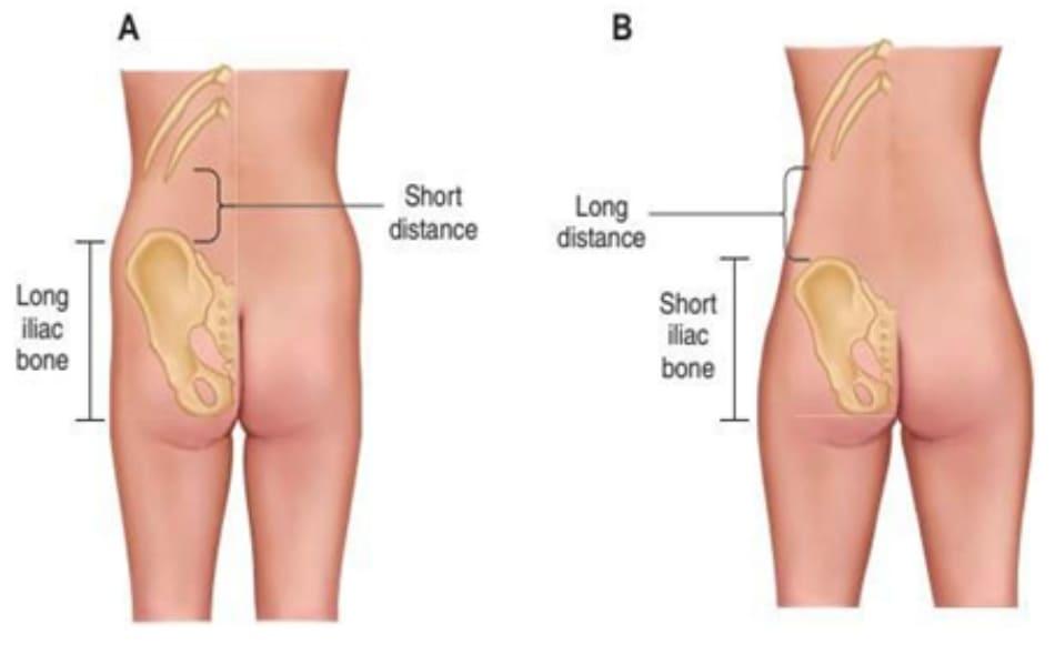 """Hình. 2. (A) Hình minh họa cấu trúc xương chậu dài/cao nhưng không đủ rộng, đồng thời khoảng cách từ xương chậu tới khung sườn sẽ ngắn lại. Đây là hình thái phức tạp nhất, bệnh nhân phải được thực hiện hút mỡ trước ở vùng eo, mạng sườn sau đó chuyển mỡ để nâng mông phần giữa ngoài thì mới có thể đặt được hình thể eo/hông """"đồng hồ cát"""". (B) Hình thái thuận lợi nhất trong chuyển mỡ, chiều cao của khung chậu tương đối cùng với khoảng cách từ khung chậu đến khung sườn dài, đồng thời độ rộng của khung chậu cũng vừa đủ."""