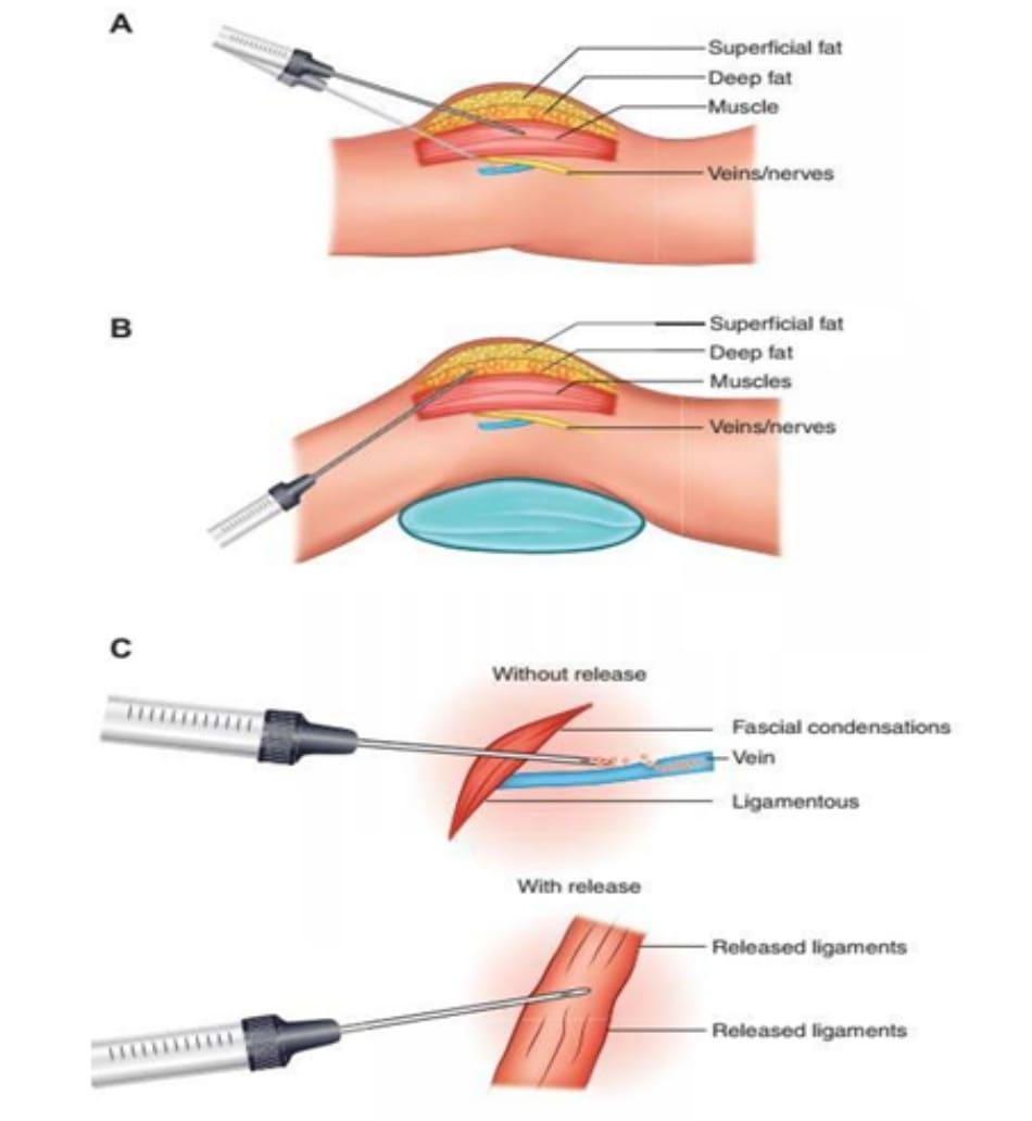 Hình. 4. (A) Các vị trí đặt kim với góc tới và độ sâu không chính xác, đi qua giới hạn là các tổ chức xơ sợi ngăn cách tổ chức dưới da và cơ, cơ và mạch máu thần kinh dưới cơ. Khuyến cáo không đưa kim đi quá các lớp cân này (đưa kim qua sẽ có cảm giác tay) và nên thay đổi góc tiêm liên tục để tránh phạm vào các tổ chức mạch máu cũng như thần kinh. (B) Bệnh nhân nằm sấp với một cái gối đệm phía dưới giúp quá trình ghép mỡ được thuận lợi và dễ dàng hơn, hạn chế các thương tổn mạch máu thần kinh. (C) Các tổ chức mô liên kết phải được giải phóng trước khi đưa canuyn vào để tránh việc đầu canuyn bị xoắn vặn và bị đẩy vào lớp sâu hơn chứa tổ chức mạch máu thần kinh quan trọng.